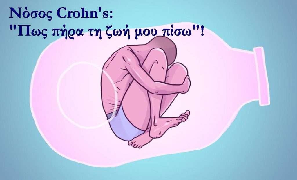 crohns-disease2a